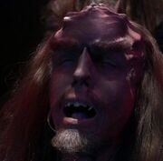 Klingon cranial ridges dissolve
