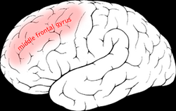 Middle frontal gyrus