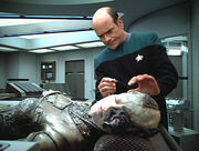 Seven of Nine in surgery to remove implants