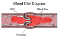 Blood clot diagram.png