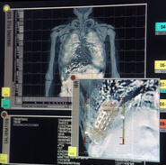 Triannon internal scan