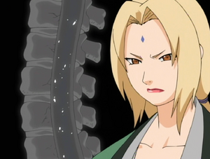 Tsunade Explaining Lee&#39;s Injury