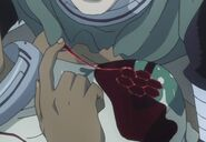 Karako's Fists Of Blood sealing a wound