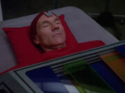 Picard during surgery